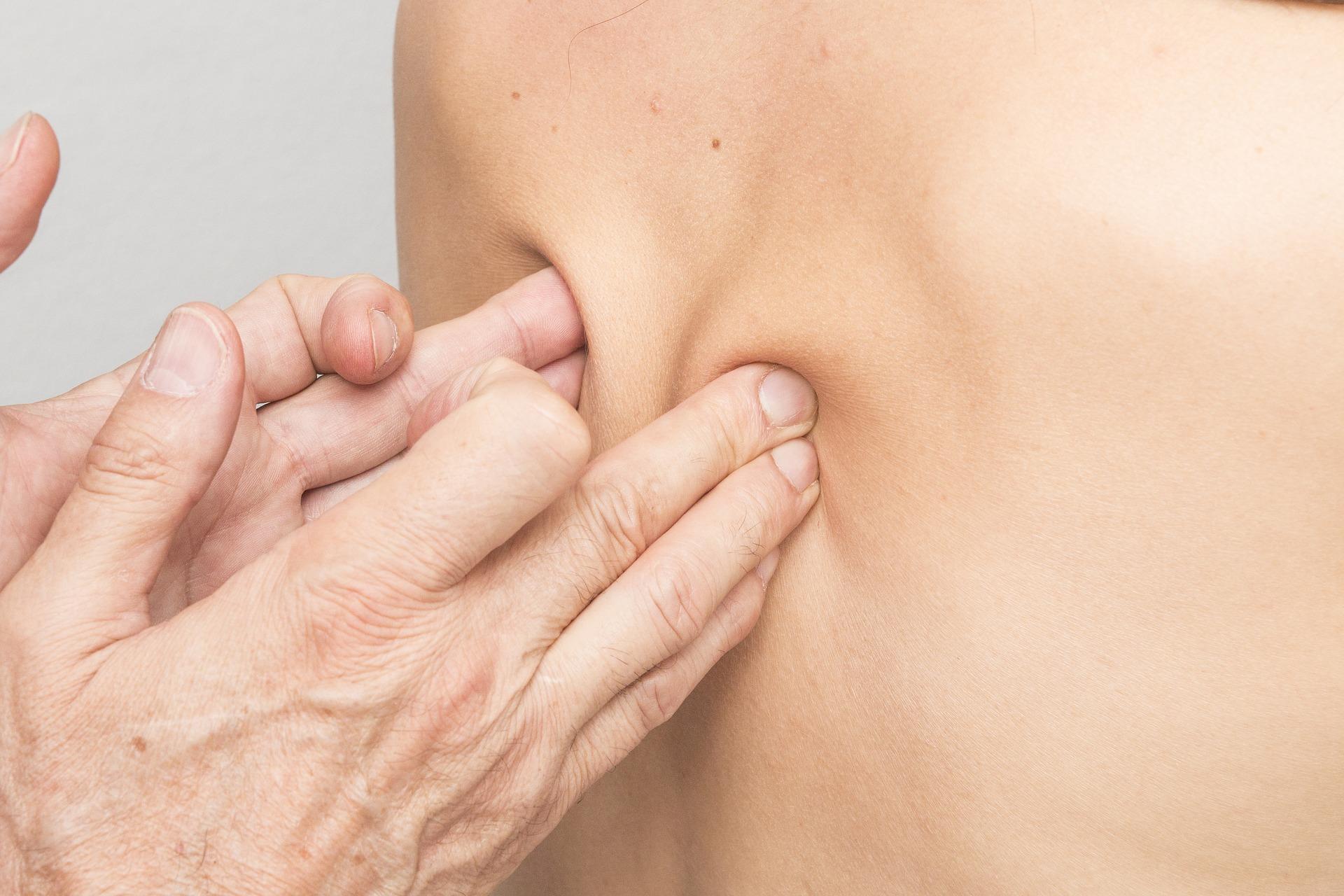 Pozbyć się punktów bólowych – czyli …terapia punktów spustowych…